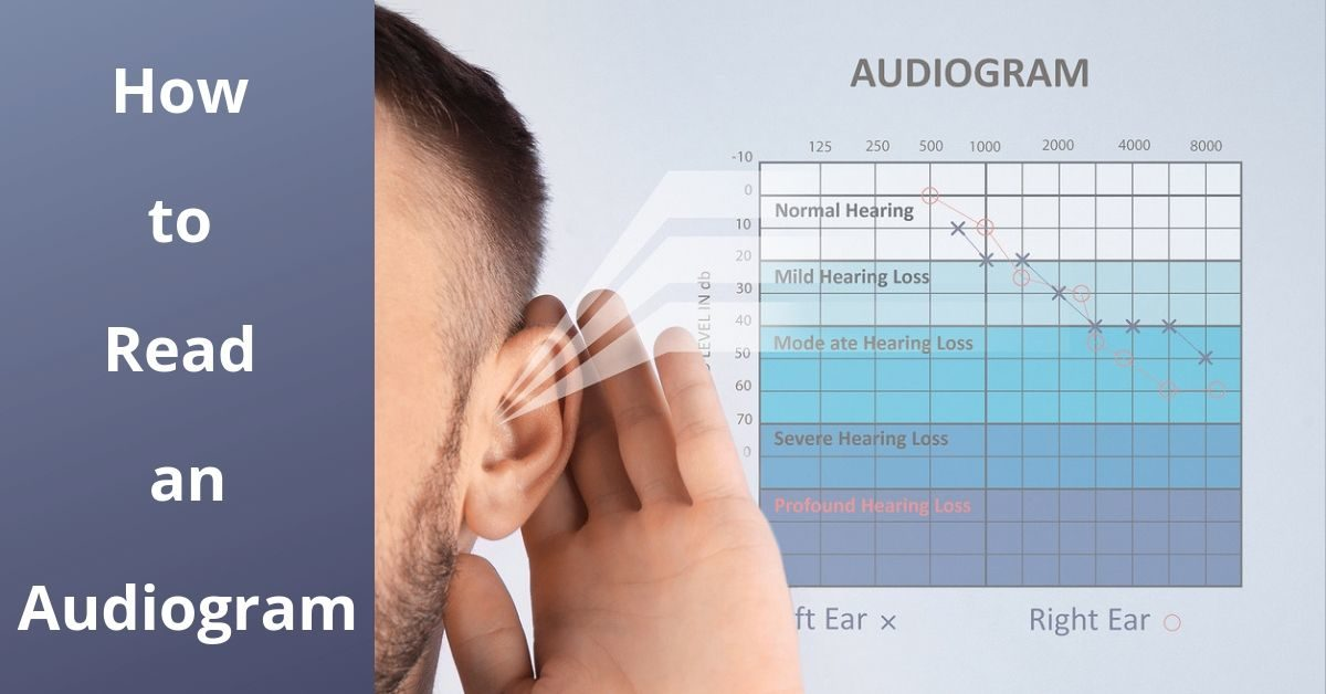 How to Read an Audiogram